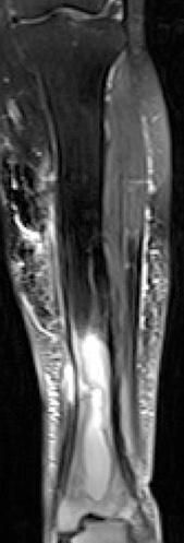 Osteomyelitis MRI