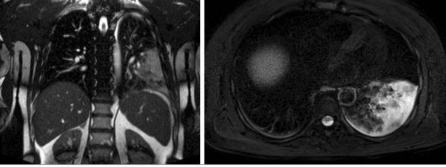 pneumonia MRI