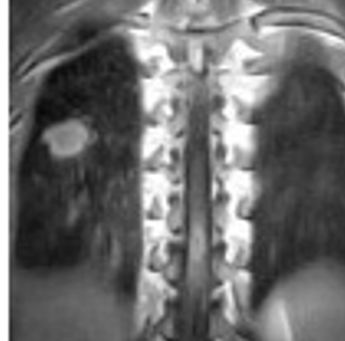 MRI. Lung tuberculoma.