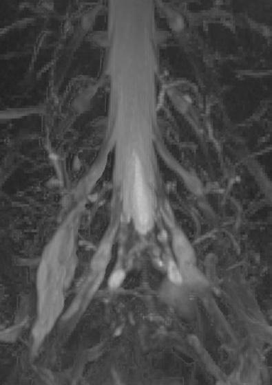 МР-нейрография