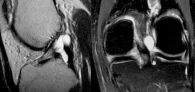 Ганглиевая киста коленного сустава размеры