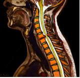 грыжа в шейном отделе-цветное МРТ
