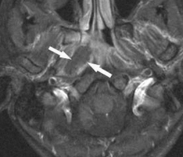 MRI. retropharingeal abscess