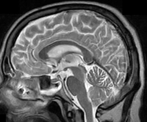 мозг-Т2 сагитт-0,2 для страницы