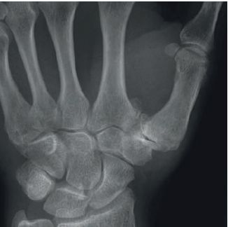 Odteoarthritis