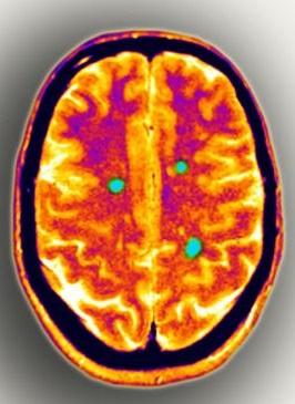 менингит рассеянный склероз