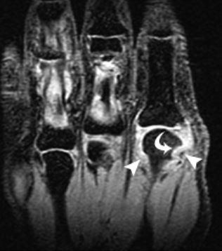 МРТ мелких суставов  МРТ кисти   МРТ стопы