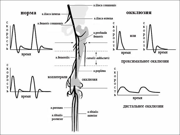 Асимметрия мышечного тонуса