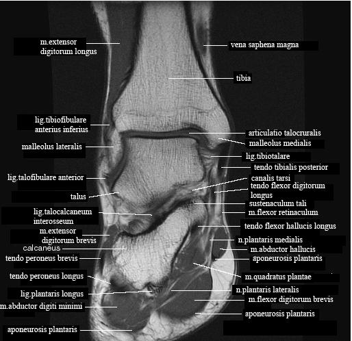 Травма голеностопного сустава, кт как укрепить скакательные суставы собаке