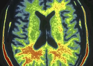 normal brain in color