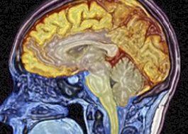 normal brain sagittal in color