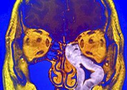 brain sinusitis
