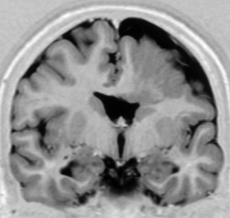 Негрубые очаговые изменения головного мозга