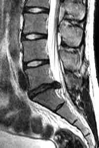 При боли в спине в ногах