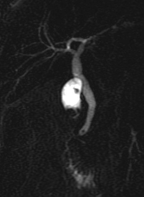 MR cholangiography
